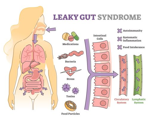 Leaky gut syndrome as immune system reaction to environment outline diagram. Educational labeled scheme with autoimmunity and inflammation causes from gastrointestinal problems vector illustration.